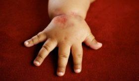 Атопический дерматит у детей: симптомы, методы лечения и спасительная профилактика